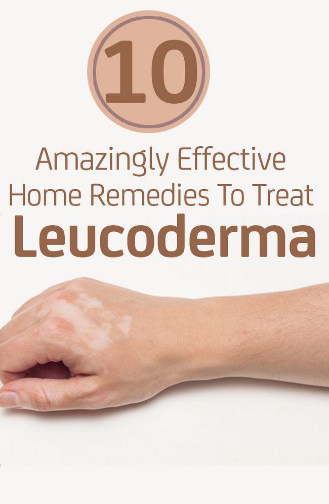 10 Erstaunlich wirksames Hausmittel zur Behandlung von leucoderma