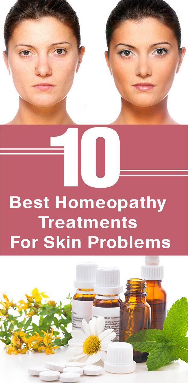 10 Die besten Homöopathie-Behandlungen für Hautprobleme