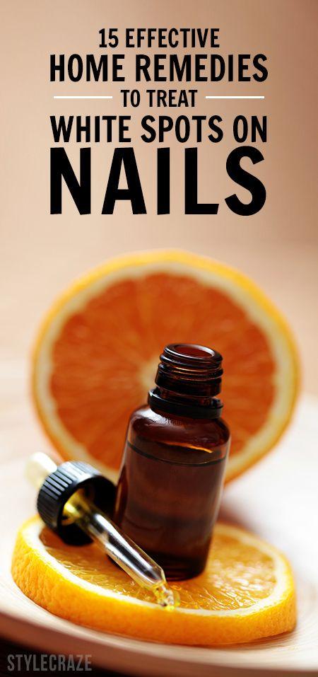 15 Wirksame Hausmittel weiße Flecken auf den Nägeln zu behandeln