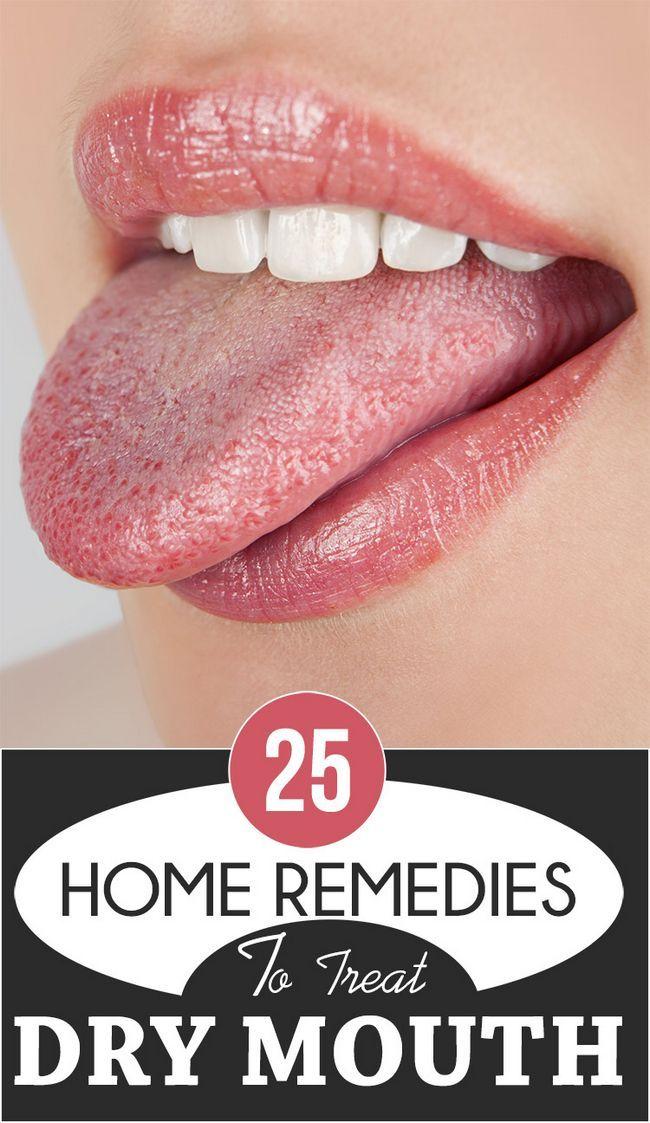 25 Wirksame Hausmittel trockenen Mund zu behandeln
