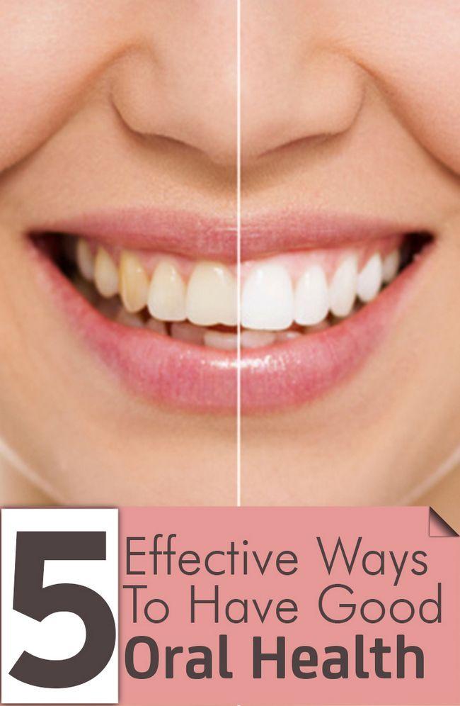 5 Wirksame Möglichkeiten, um gute Mundgesundheit haben