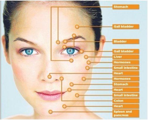 Akne Gesicht Karte - Ursache und Lösung für Akne durch Pickel Platzierung finden