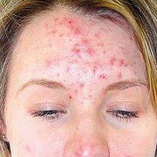 Akne Bilder - was ist wie Akne aussehen?