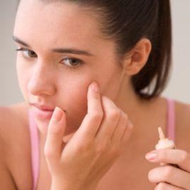 Adult Akne-Behandlung - Wie wird man bei Erwachsenen Akne loszuwerden