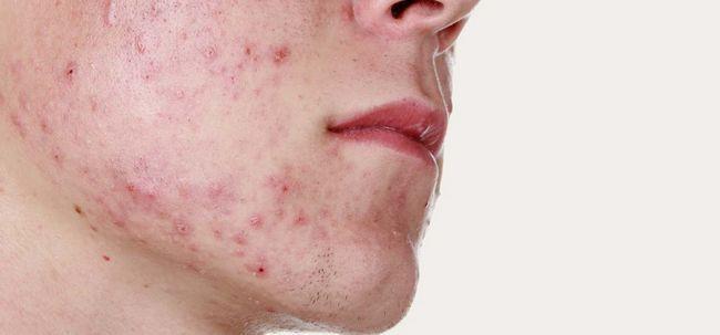 Adult Akne - Arten, Ursachen, treamtment und Pflege