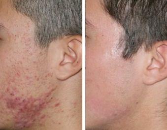 Bestes Akne-Produkt für fettige Haut
