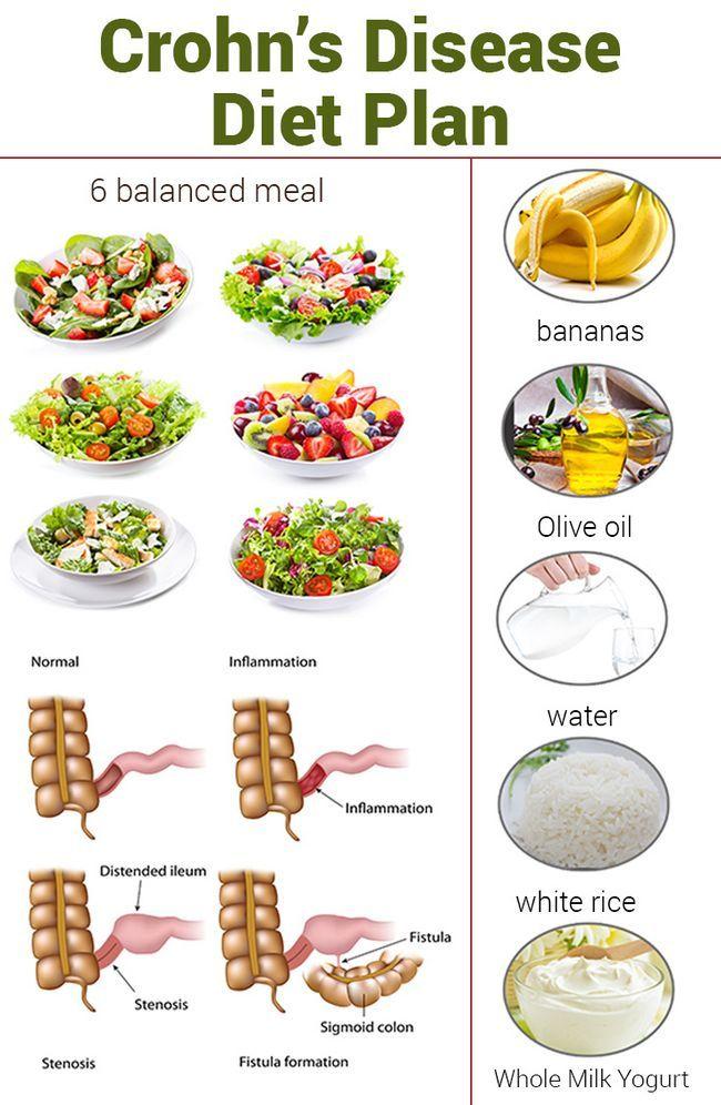 Morbus Crohn-Diät-Plan - was ist das und wie funktioniert es?