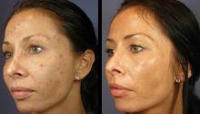 Dermatologie Lösungen für Erwachsenen Akne: Was ist die effektivste Hautarzt Medikamente für Akne?