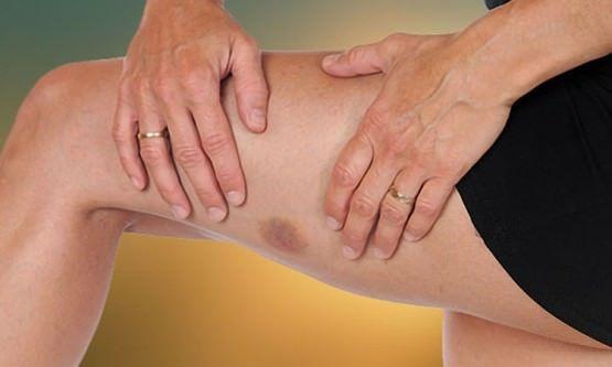 Hausmittel für Quetschungen (Beine, Arme, Hand, Hals und Gesicht)