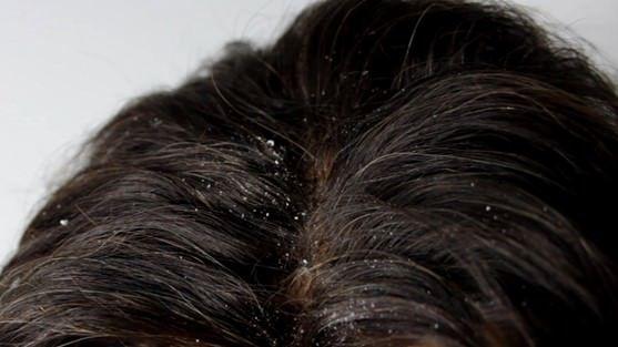 Hausmittel für Schuppen Behandlung und Shampoo