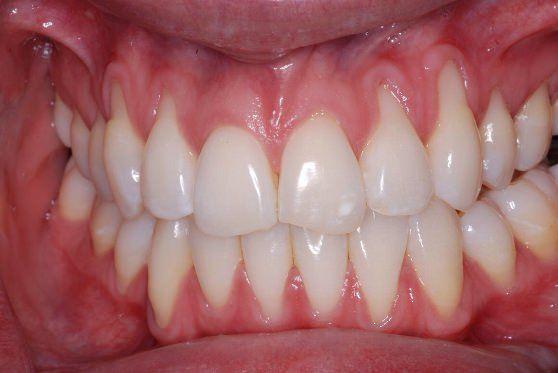 Hausmittel Zahnfleischrückgang wieder wachsen