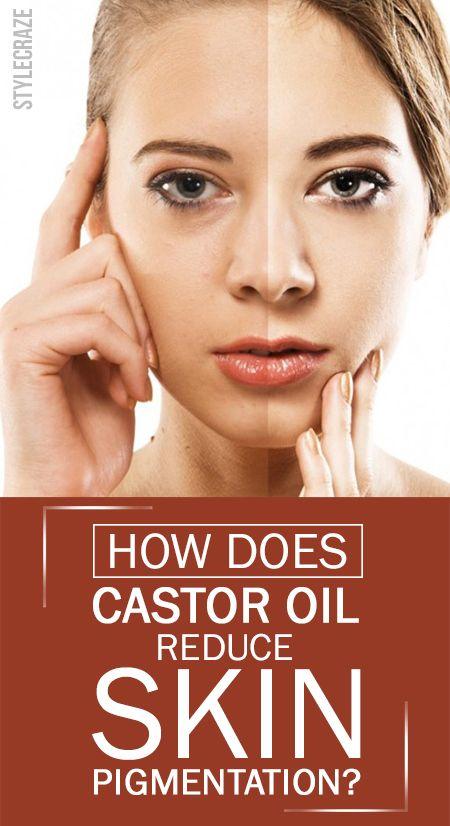 Wie wirkt Rizinusöl reduzieren Pigmentierung der Haut?