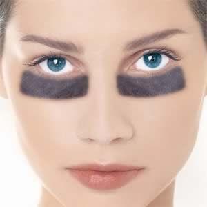 Wie loswerden unter den Augen dunkle Augenringe - Leser-Abfrage