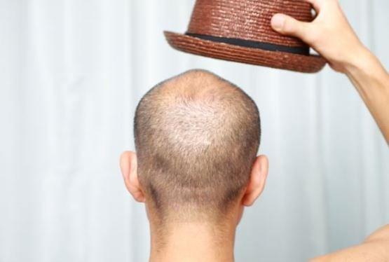 Wie man Haarausfall bei Frauen und Männern verhindern
