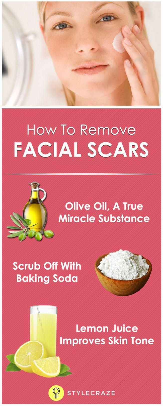 Wie zu entfernen und Narben im Gesicht zu reduzieren?