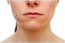 Wie plötzliche Erwachsenen zur Behandlung von Akne