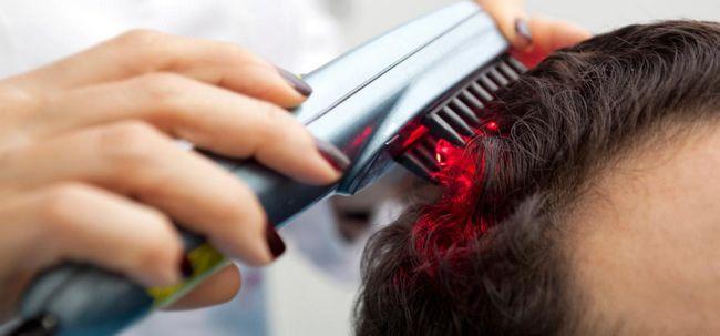 Laser-Therapie: eine neuartige Art und Weise Haarausfall zu kämpfen