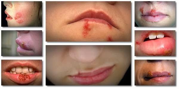 Natürliche Lippenherpes Heilmittel bekommen von Fieberbläschen befreien