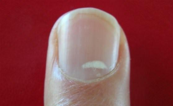 Behandeln Sie weiße Flecken auf den Nägeln mit Hausmitteln