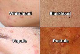 Arten von Akne - welche Art von Akne haben Sie?
