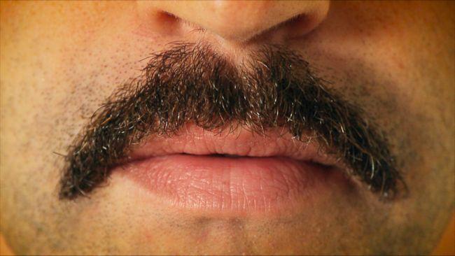 Was sind die Ursachen von Akne um den Mund? Drei einfache Lösungen zu perioral Akne